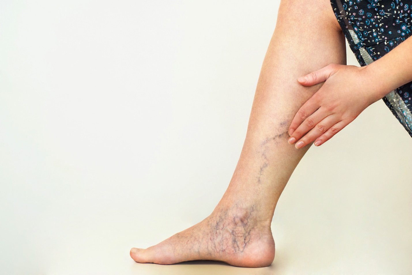 C:\Users\Kathir\Pictures\Home Remedies for Varicose Veins.jpg