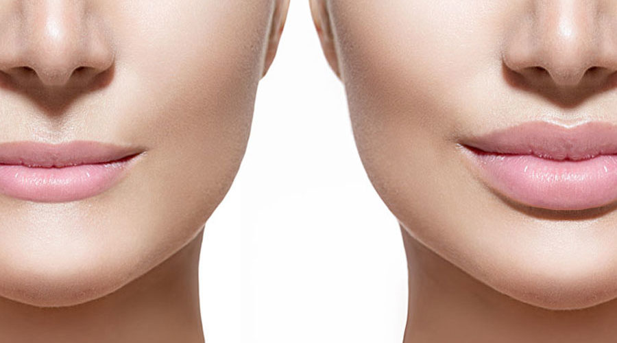 The Do's and Don'ts after getting Lip Injections