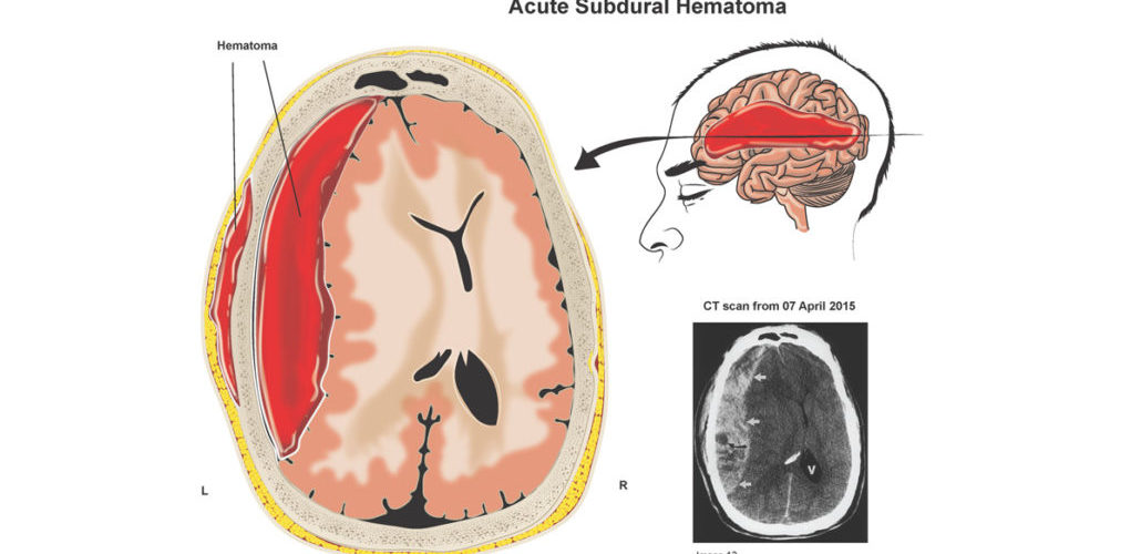 Subdural hematoma after a car accident